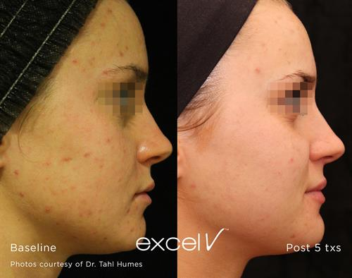 Cutera Excel V Laser for Acne Scarring