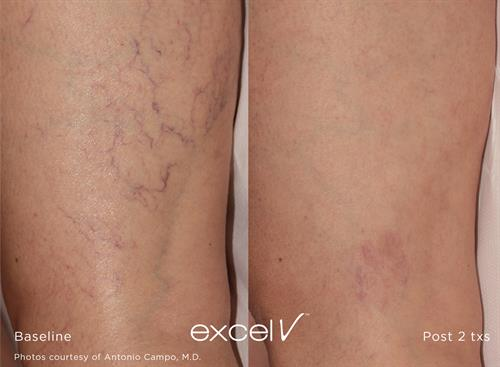 Cutera Excel V Laser for Veins