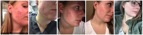 Accutane for Cystic Acne