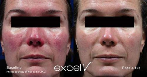 Cutera Excel V Laser for Rosacea