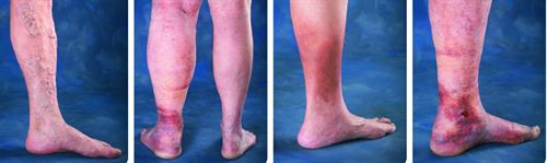 Gallery Image Venous-Disease-Progression-Image-e1473842404609.jpg