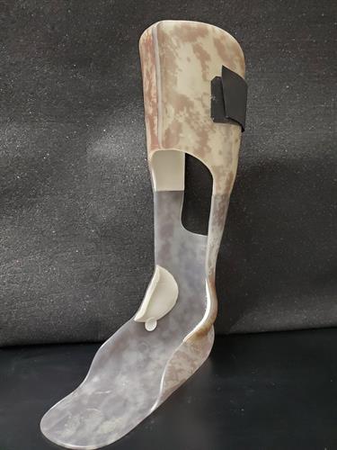 Custom Ankle Foot Orthosis