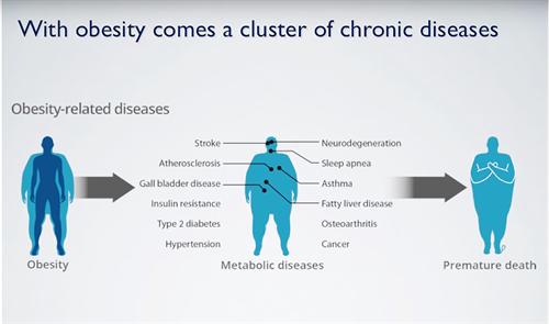 Obesity means pre-mature death!