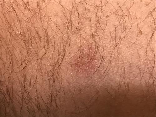 1 month post laser treatment of Actinic Keratosis