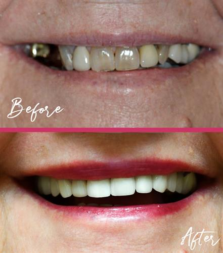 Dr. Catherine Young restores smiles and self confidence through state-of-the-art dentistry.