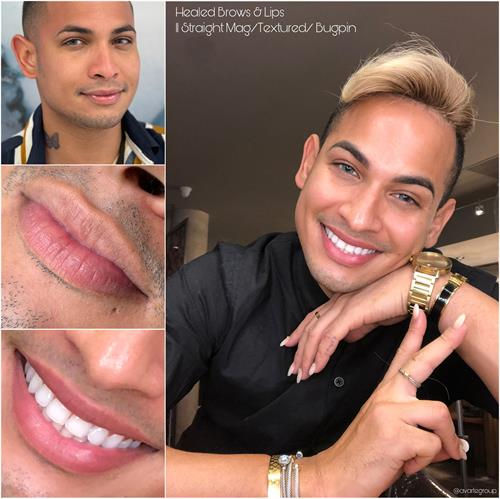 Male Lips Before and Healed