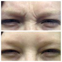 Dysport/Botox For Expression Lines
