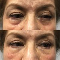 Undereye Rejuvenation
