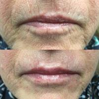 Softening of Fine Lines + Lip Augmentation