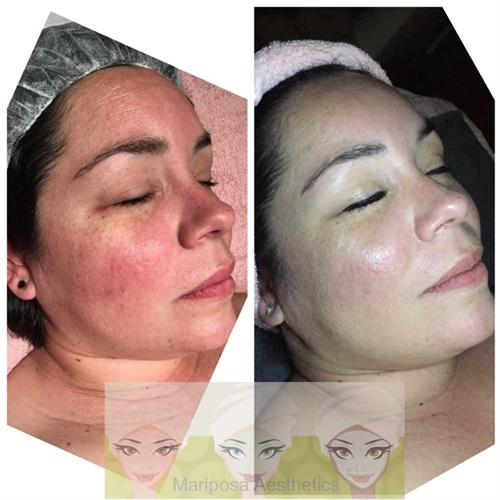 Rosacea correction