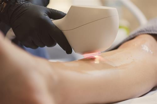 Laser hair removal, packages are available.