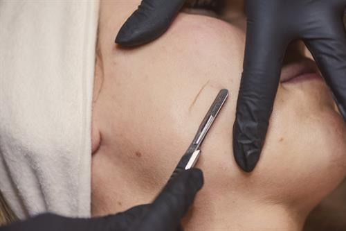 "Dermaplaning treatment removes ""peach fuzz"" and layers of dead, dry skin."