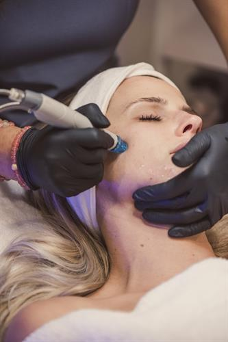 Hydrafacial treatment is one of our most popular facials, it is great for all skin types.
