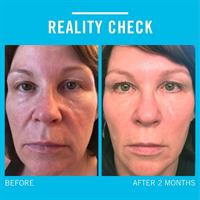 Redefine for wrinkles, fine lines, firmness, and healthy skin