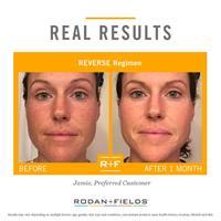 Reverse Regimen for sun-damage, malasma,brown-spots, hyper-pigmentation
