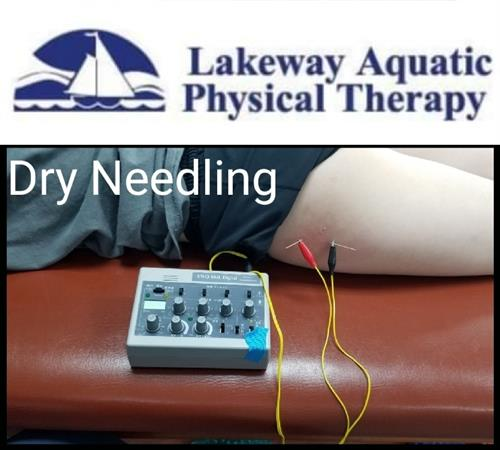 Gallery Image dry_needling.jpg