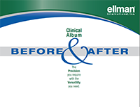 Cliniical Album Before & After Booklet for Ellman® International