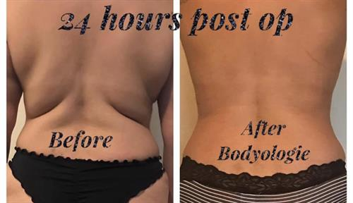 Before and after back fat pics