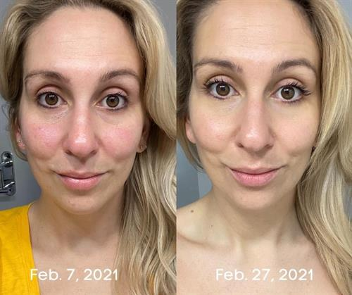 One-month before and after of the Pure Results Regimen