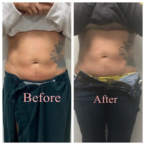 CryoSkin Slimming results