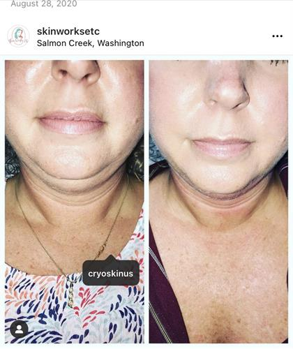 Before and After of Cryo Slimming on chin 3 treatments
