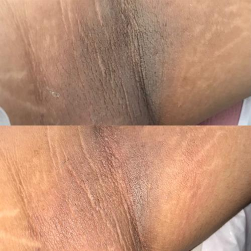 Before and after intimate Bleaching session (under arm)