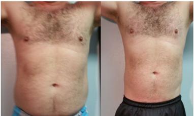 LipoMelt Results - LED Non-invasive body sculpting