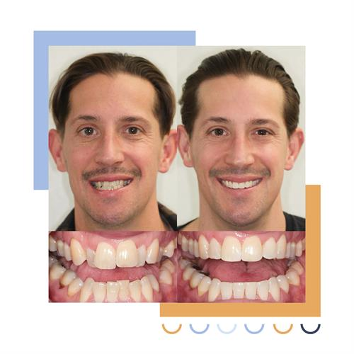 Gallery Image Before_and_After_Smile-.jpg