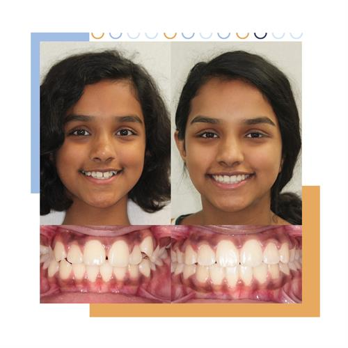 Gallery Image Before_and_After_Smile-12.jpg