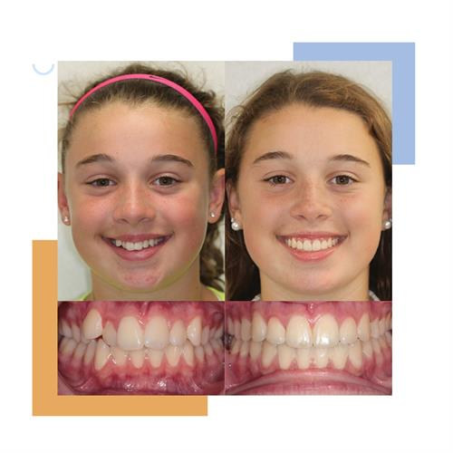 Gallery Image Before_and_After_Smile-5.jpg