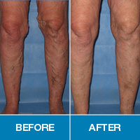 Gilvydis Vein Clinic offers innovative leg vein treatment options, so you can be back on your feet in no time.