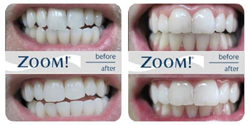 Gallery Image zoom-teeth-whitening-before-and-after-4.jpg