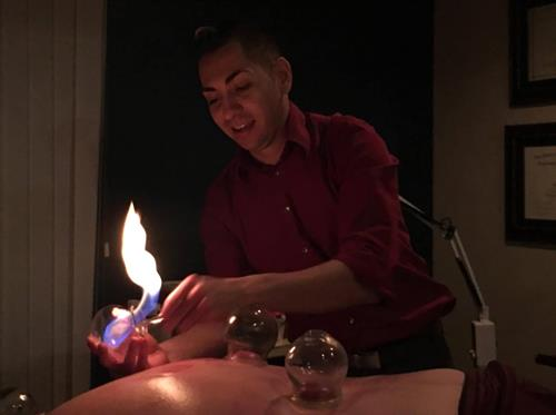 Gallery Image Fire_Cupping.jpg