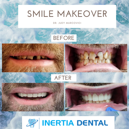 Full Mouth Smile Rehabilitation
