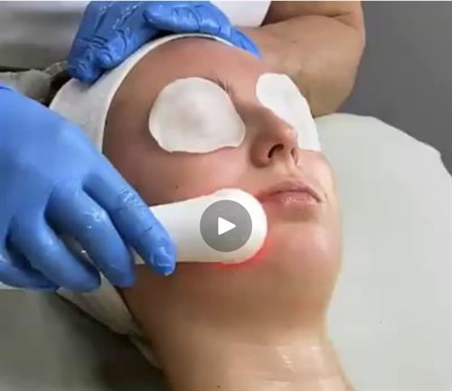 We are incorporating LED theraphy to our snaxnrelax classic facial included invthe promotion
