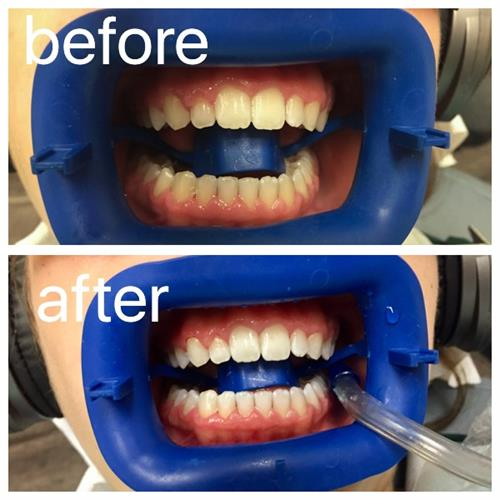 Before & After in-office Zoom! Whitening