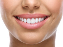 Teeth Whitening with SinSational Smiles!