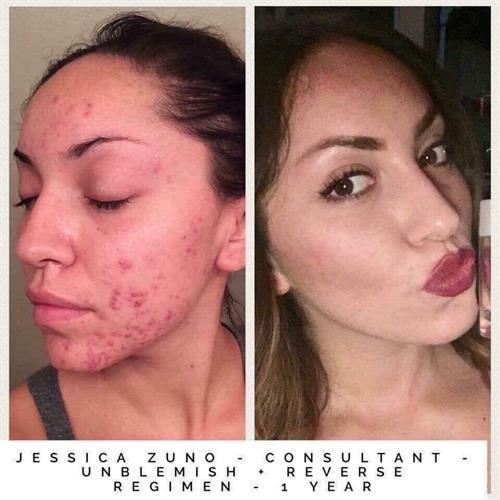 Acne & Anti-Aging Unblemish Regimen, Before & After
