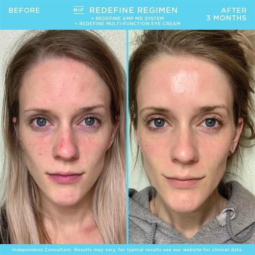 Anti-Aging Redefine Regimen, Before & After