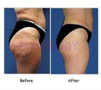 RF Thighs/Buttocks Before and After 8 Treatments