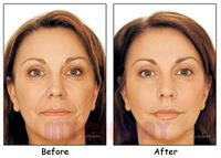 RF Collegan Induction Face Before and After 4 Treatments