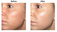 Micro-Needling Skin Rejuvenation Before & After Acne Scars