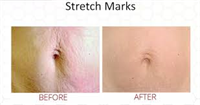 Micro-Needling Skin Rejuvenation Before & After Stretch Marks