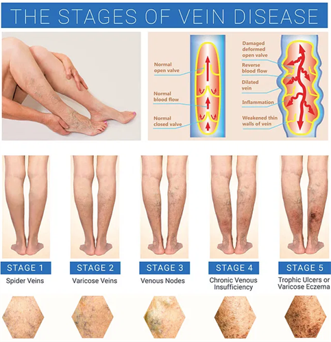 Vein Disease Treatment