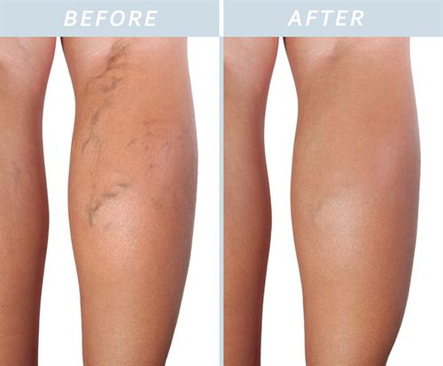 Vein Treatment Results
