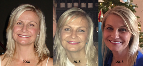 My own 10 year transformation after using our products from 2016