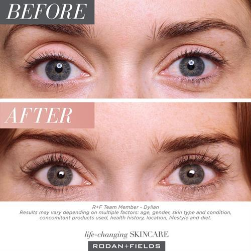 Lash Boost visibly improves the appearance of your natural lashes and brows