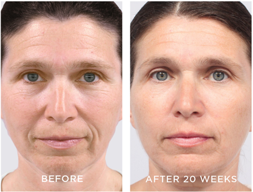 AMP MD Roller and Intensive Renewing Serum for fine lines, wrinkles, sagging