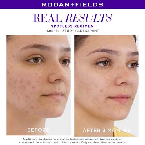 Spotless 2 step regimen for teen acne (results in 100% of users in one week)
