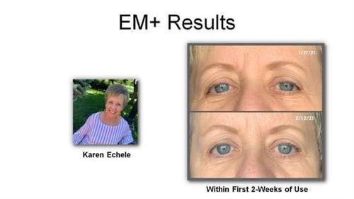 2 week Real results for one using Advanced Repair Eye Treatment